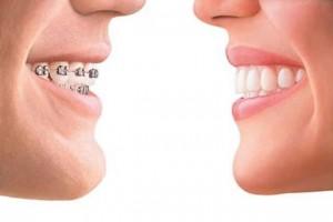 牙齿不齐这三个阶段矫正效果最好