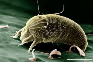 枕头套的螨虫量多吗螨虫有什么危害